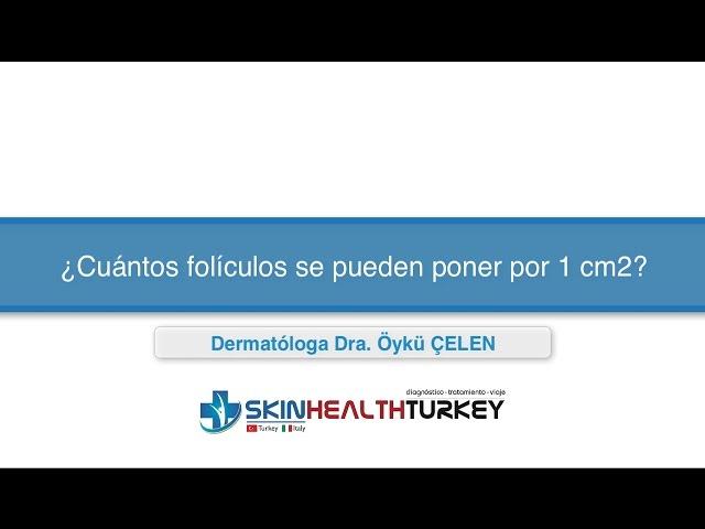 Trasplante Capilar Turquía - ¿Cuántos folículos se pueden poner por 1 cm2? - Dra. Oyku Celen