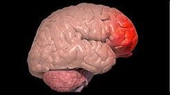 Cerebral Contusion ICD 9