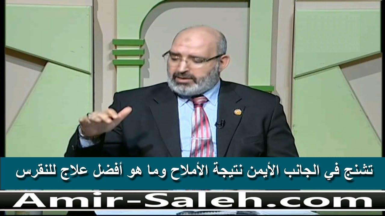 تشنج في الجانب الأيمن نتيجة الأملاح وما هو أفضل علاج للنقرس | الدكتور أمير صالح