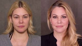 How Supermodel Shanna Moakler Keeps Her Face Looking Young