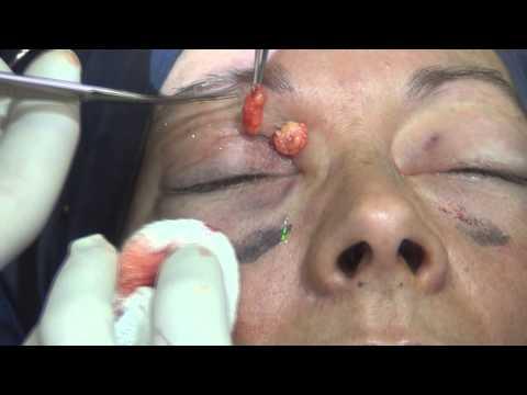 Rejuvenecimiento de párpados sin cicatrices + Fire Xel - More Xel (15095)