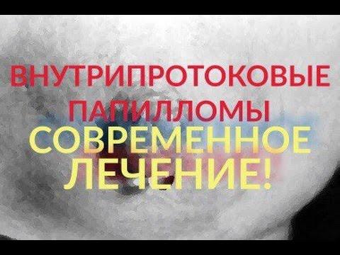 ЛЕЧЕНИЕ ВНУТРИПРОТОКОВЫХ ПАПИЛЛОМ МОЛОЧНЫХ ЖЕЛЁЗ!