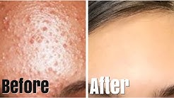 hqdefault - How To Get Rid Of Small Acne Bumps Fast