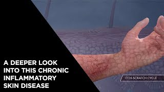 A Deeper Look Into This Chronic Inflammatory Skin Disease