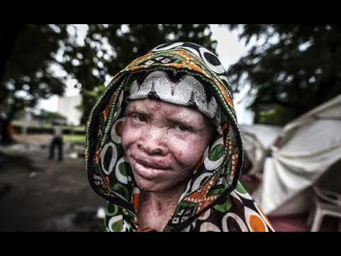 All Cultures Are Beautiful #3 - The Mozambique Gold Rush