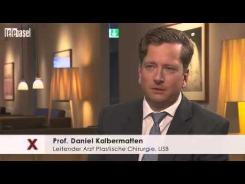Prof. Dr. Dirk Schaefer und Prof.Dr.Dr. Daniel Kalbermatten Universitätsspital Basel in Telebasel