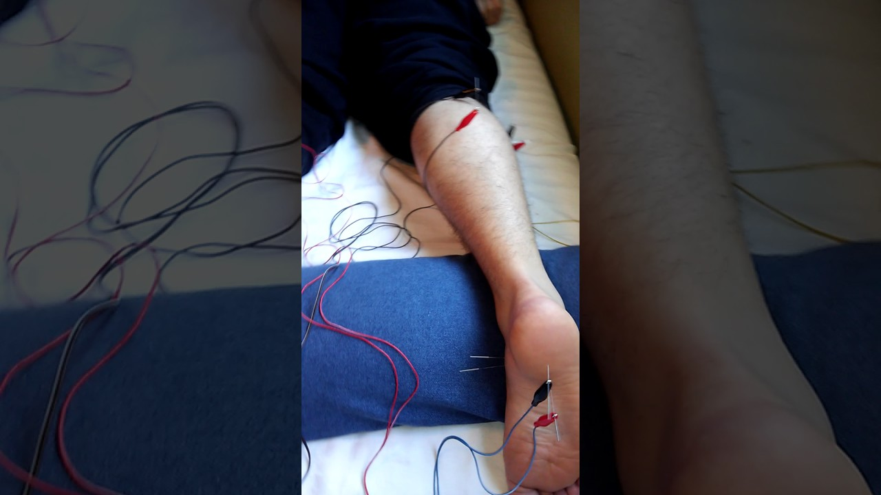 Acupuncture for Plantar Fasciitis part 1 - YouTube