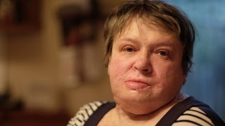 Woman set on fire by husband denied home insurance payout thumbnail