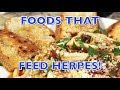 FOODS THAT FEED HERPES