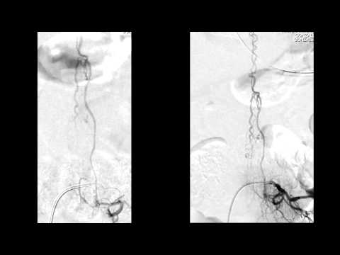 Arteriovenous Malformation Patient Recovery.