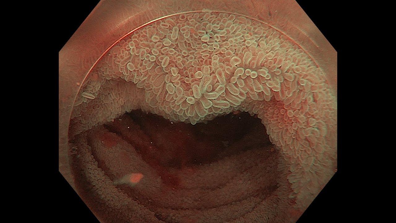 villous mucosa of the terminal ileum - youtube, Human Body