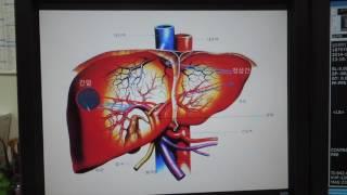 [간센터] 3. 간동맥 색전술