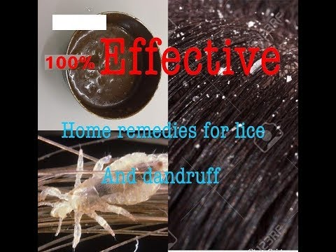 How to get rid of lice and dandruff|| home remedies|| 100% effective in one  use !!