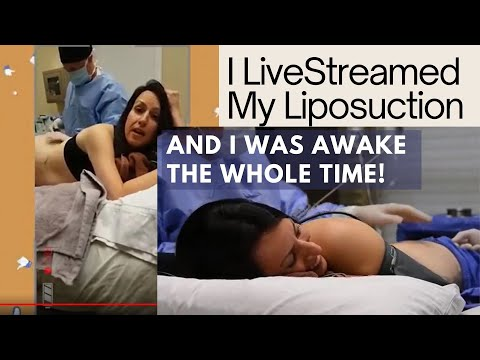 Watch Laser Liposuction LIVE And AWAKE With Dr. Mitchell Chasin Of Reflections Center In New Jersey