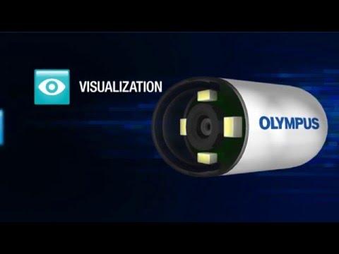 Capsule Endoscopy Animation – Olympus EndoCapsule