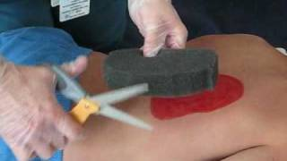 Wound Vac Demonstration