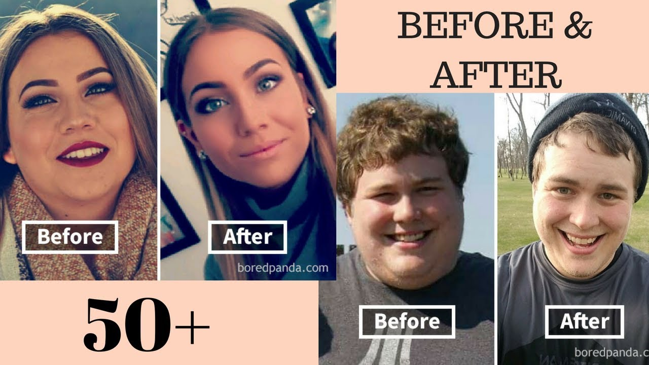 how weight loss changes your face