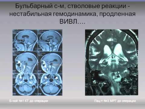 Во время операции на мозге пациент должен разговаривать
