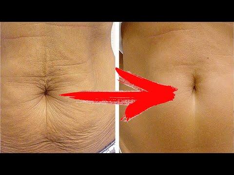 ЧТО ДЕЛАТЬ? Если кожа обвисла после похудения и не только - Все очень просто!