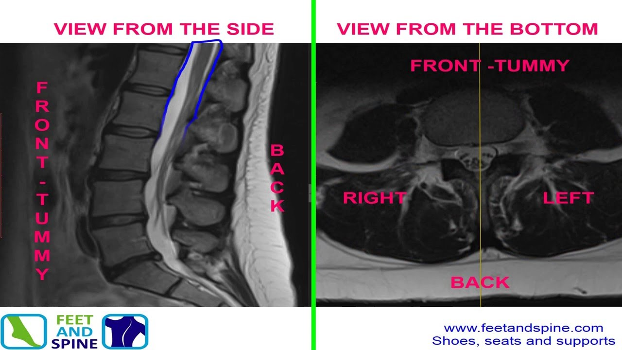 Anatomy of the Lumbar Spine - MRI scan - YouTube