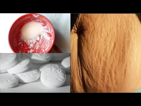 products that can remove stretch marks