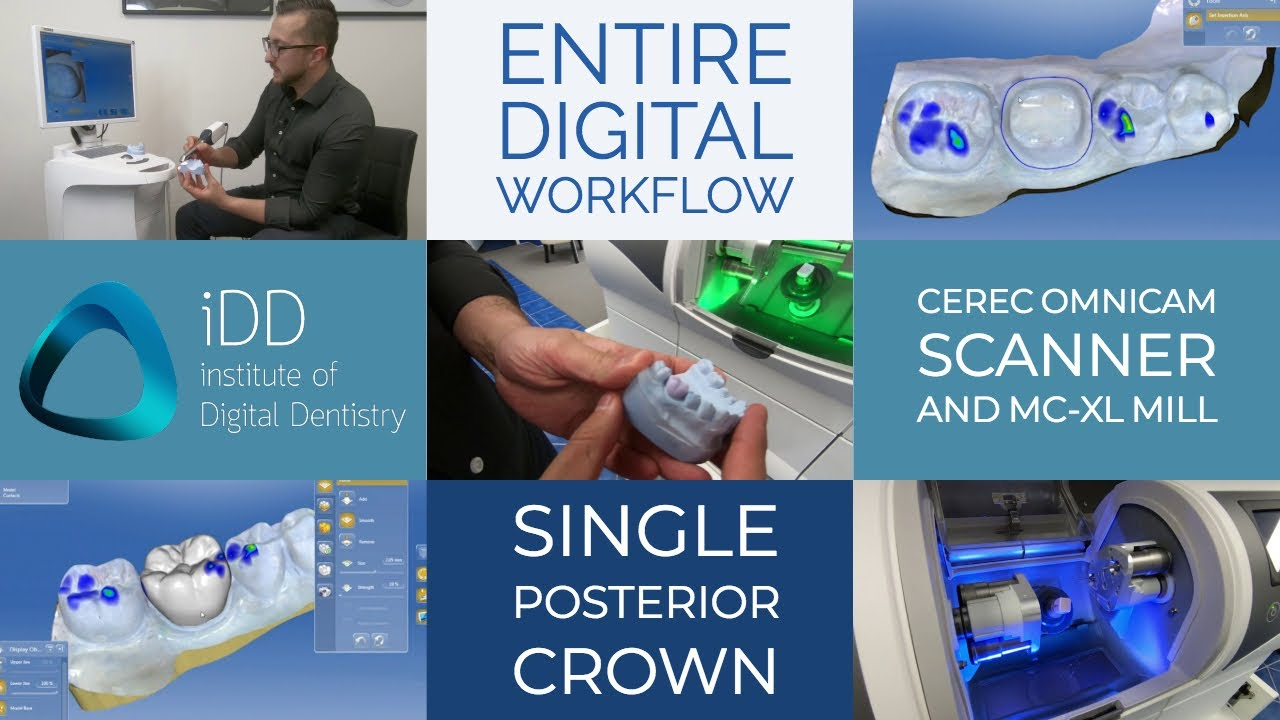 entire digital workflow for cerec omnicam scanner and mc xl mill for a single posterior crown institute of digital dentistry [ 1280 x 720 Pixel ]