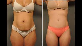 Karın Germe Ameliyatı - Vanity Estetik