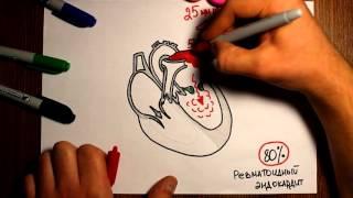 """Митральный стеноз. Гемодинамика при пороках сердца. - """"Просто о сложном"""" -"""