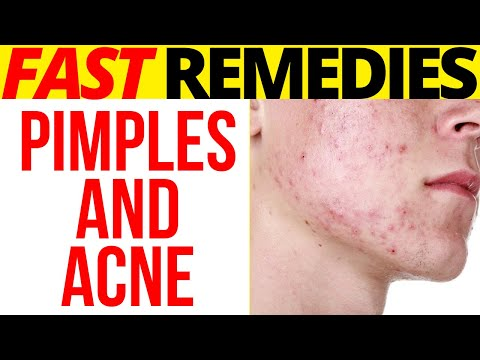 how-to-remove-pimple-marks-and-acne-scars-at-home:-9-remedies