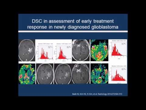[Listen to Authors] Emerging Techniques in Brain Tumor Imaging: What Radiologists Need to Know