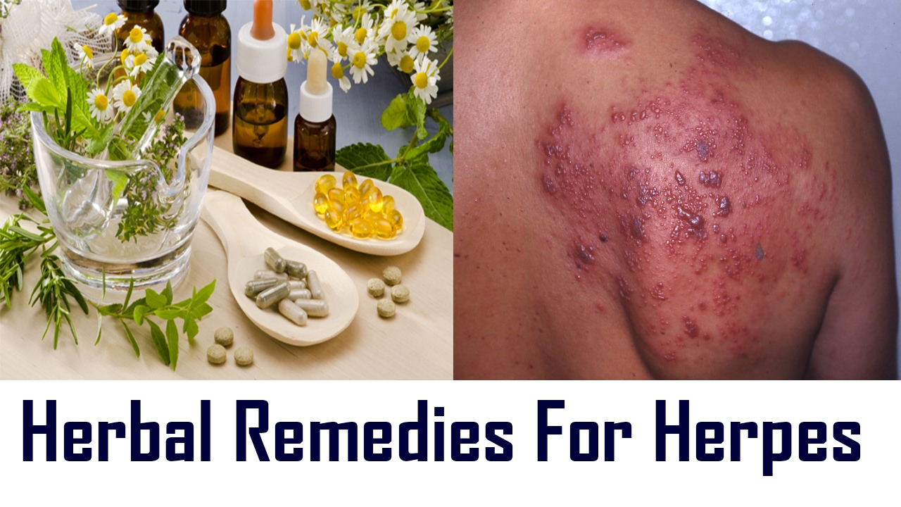 15 Effective Natural Remedies To Treat Herpes