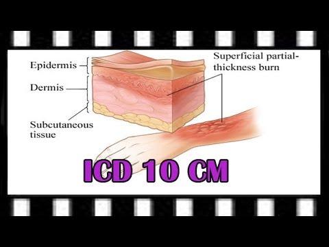 ICD-10 Training — ICD-10-CM Burns and TBSA