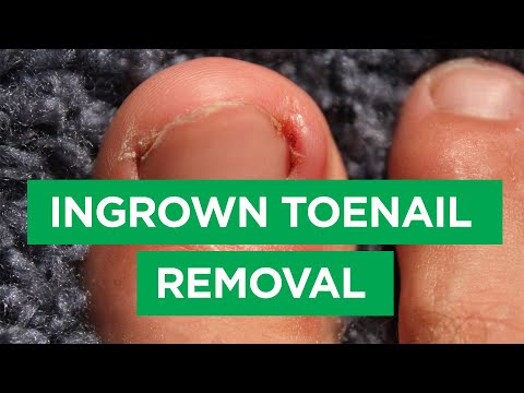 Ep. 59: Ingrown Toenail Removal Procedure | The Scope