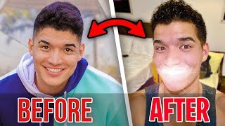 I Bought NEW TEETH in South America! *not clickbait*
