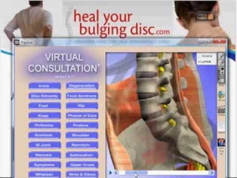 Degenerative Disc Disease (DDD) - What Degenerative Disc Disease Is,  Causes, Symptoms, Treatments