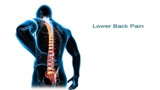 5 Steps to Lower Back Pain Relief