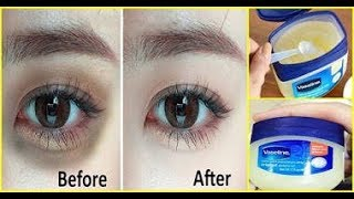 Remède pour supprimer définitivement les cernes noirs avec de la vaseline Santé&Divertissement