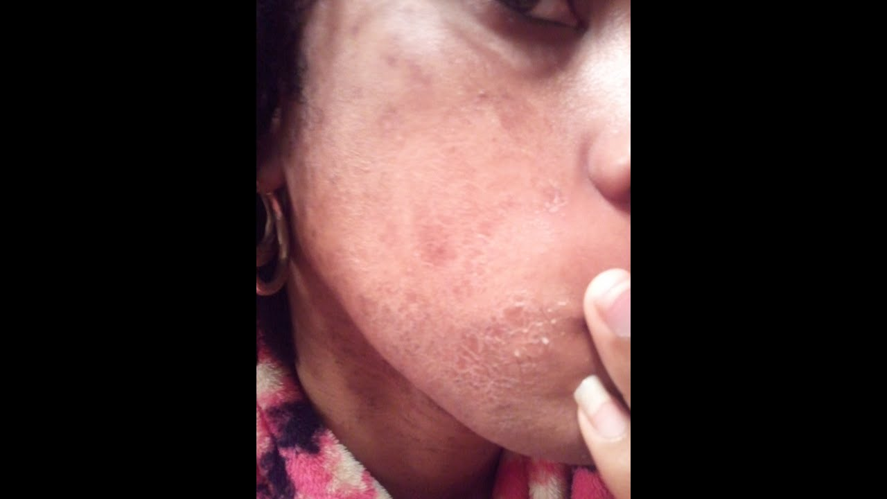 Does salicylic acid help get rid of acne Answer I ask you kind people