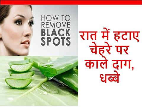 र त म हट ए च हर पर क ल द ग धब ब Daag Dhabe Hatane Ke Upay Remove Dark Spots On Face Acne