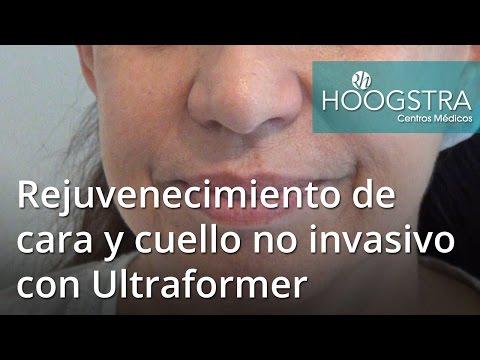 Rejuvenecimiento de cara y cuello no invasivo con Ultraformer (17020)