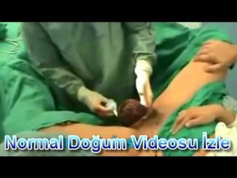 Normal Doğum Videosu İzle