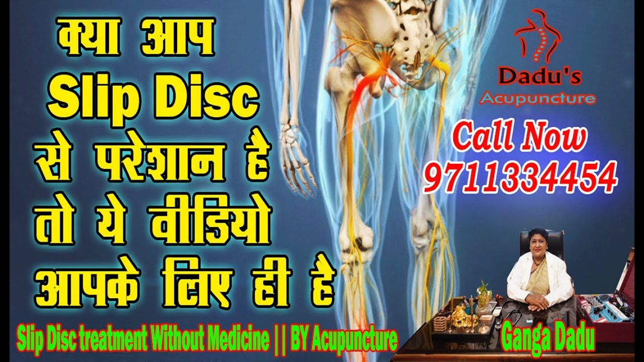 Slip Disc Treatment with Live Demo by Acupuncture, स्लिप ...