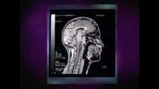 L'imagerie par résonance magnétique ou IRM