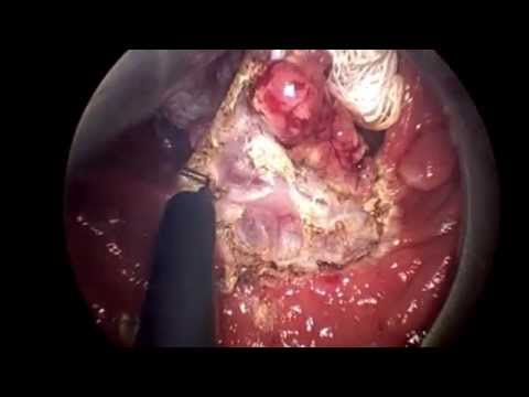 Ressecção transanal microcirúrgica / Transanal endoscopic microsurgery for rectal adenomas