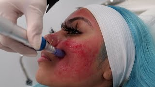 Baixar MICRO-NEEDLING: does it hurt, what does it do, what you should know???