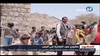 مركز الملك سلمان يطق مشروع سوء التغذية باليمن