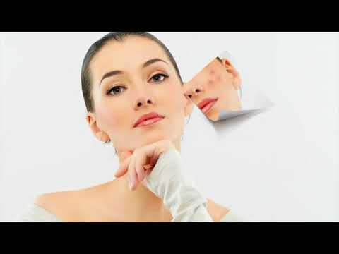 Warm Compress Helps To Treat Acne Quickly During Pregnancy- How To Do