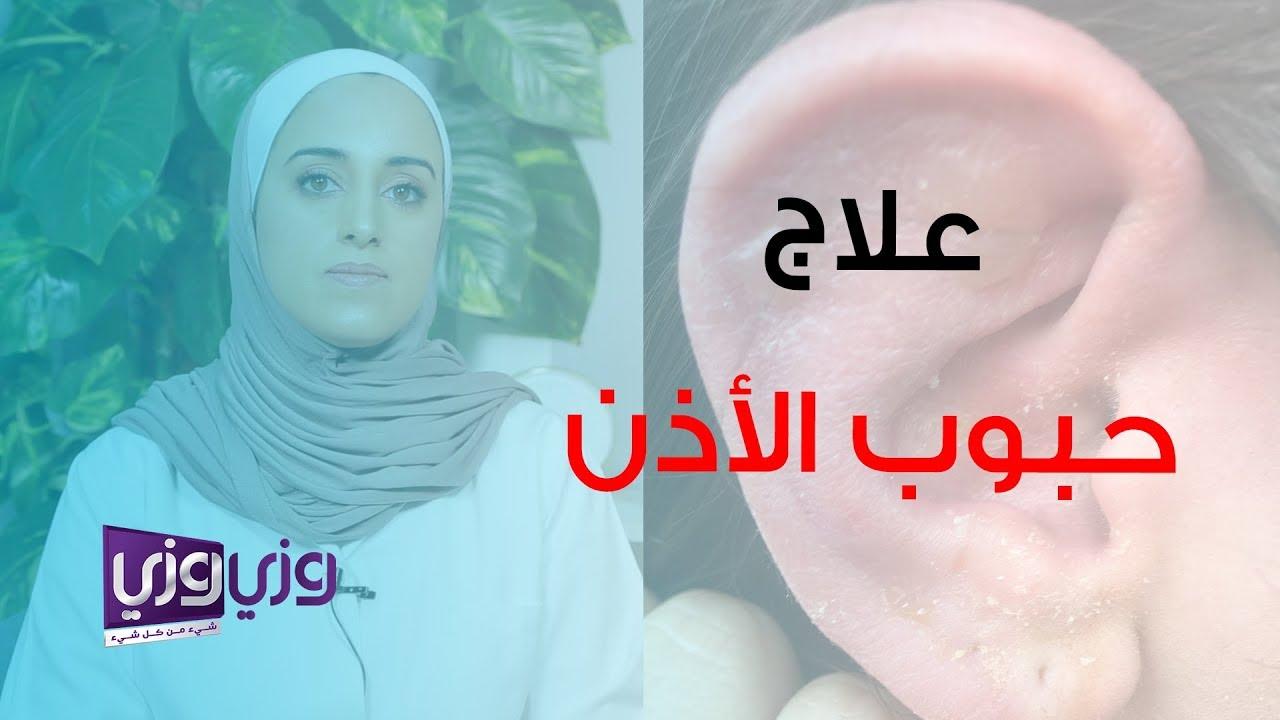 علاج حبوب الأذن وأسبابها وأعراضها Youtube