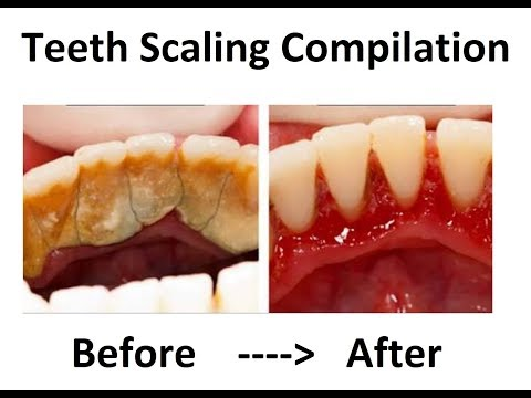 Teeth Scaling And Cleaning - Compilation