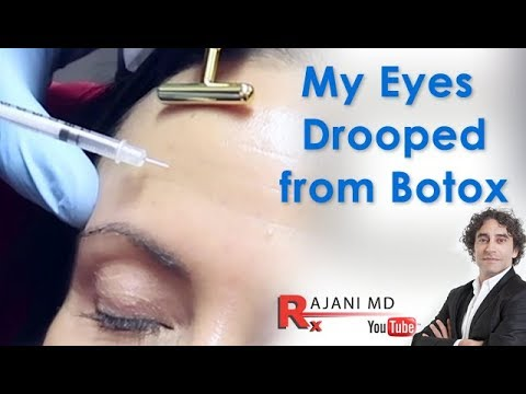 My Eyes Drooped after Botox-Dr Rajani